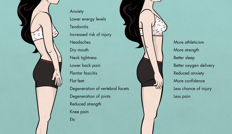 má postura de mulher magra